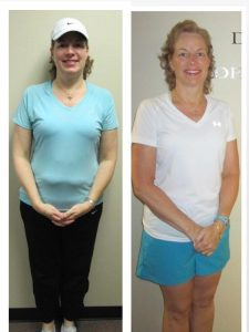 before and after photos of a female client