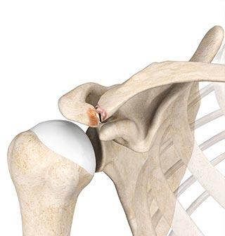 weightlifters shoulder injury human anatomy