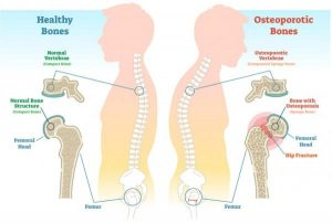osteoporosis kyphosis