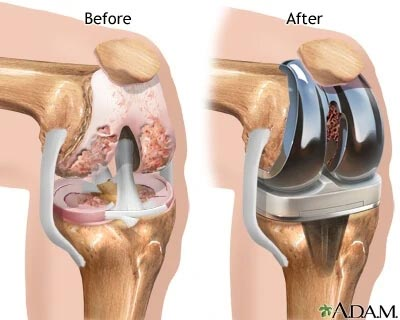 Medical Diagram of a before and after total knee replacement