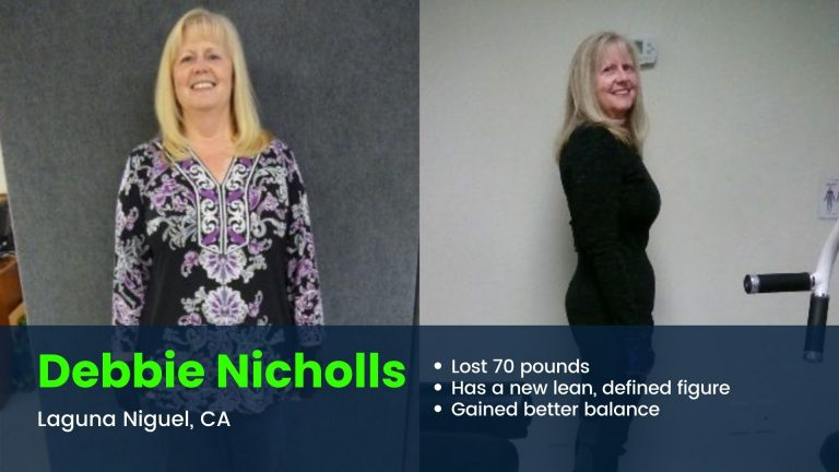 Laguna Niguel client loses 70 pounds before and after photo