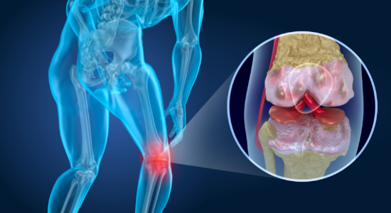 Knee Arthritis from too much exercise