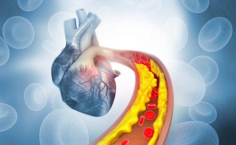 plaque in artery headed to heart
