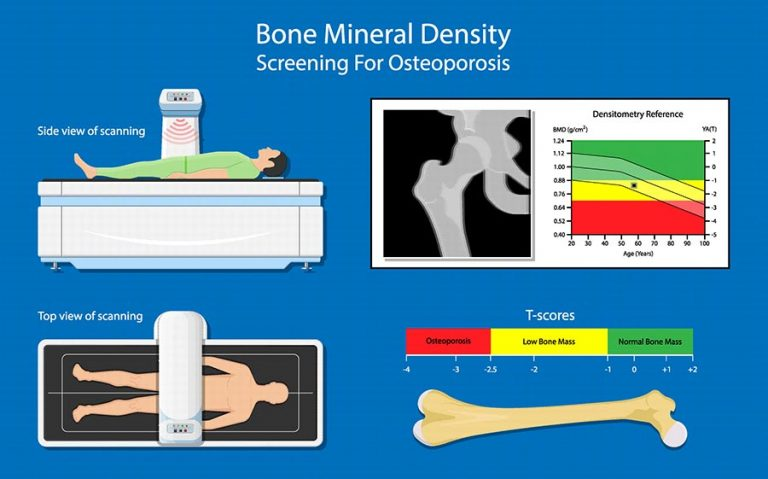 Dexa Scan for Osteoporosis Infographic
