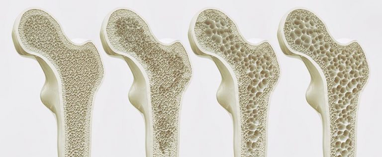 Osteoporosis Stages - 4 Stages of Bone Density Loss
